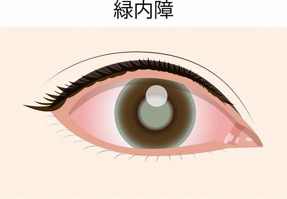 目のサプリを徹底調査!目がよろこぶサプリとその効果の違いは?